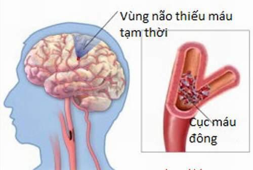 Hình ảnh Chứng Tê Nhức Đầu Ngón Tay - Có Trị Được Không? chính hãng tốt giá rẻ nhất tại DamiLama