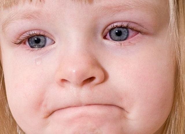 Bệnh Nháy Mắt Ở Trẻ Em Và 5 Điều Cần Lưu Ý Khi Điều Trị 3 2020