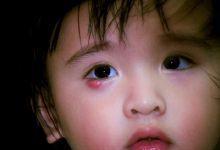 Photo of Top 3 Cách Chữa Lẹo Mắt Ở Trẻ Em Đơn Giản Và Hiệu Quả