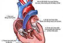 Photo of Thông tin cần biết về bệnh thấp tim ở trẻ em và 5 cách phòng tránh bệnh
