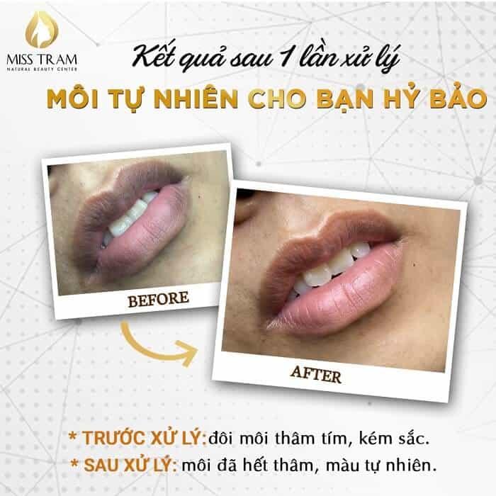 Hình ảnh môi trước và sau khi xử lý thâm