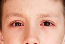 Photo of Bệnh đau mắt đỏ ở trẻ em và 4 bí quyết hỗ trợ điều trị hiệu quả
